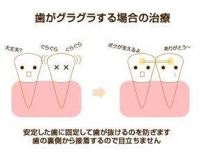歯がグラグラする場合の治療