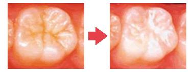 シーラント治療の例