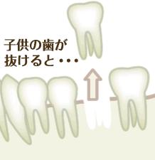 子供の歯が抜けると
