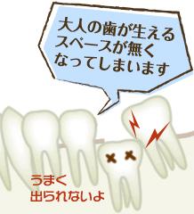 大人の歯が生えるスペースが無くなってしまいます