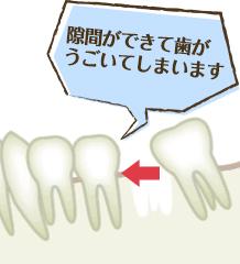 隙間ができて歯がうごいてしまいます