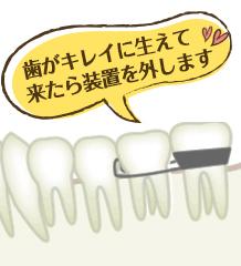 歯がキレイに生えて来たら装置を外します