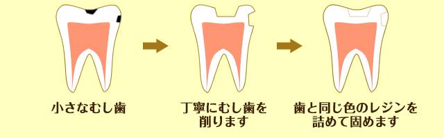 小さなむし歯の治療