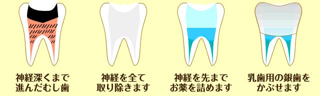 乳歯のむし歯の治療(中度)